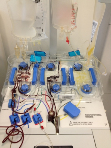 Apheresis machine UCLH